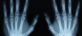 raggi x, antiossidanti, raggi x e antiossidanti, raggi x corpo