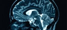 cnr, in-cnr, cnr cervello, cervello occhio
